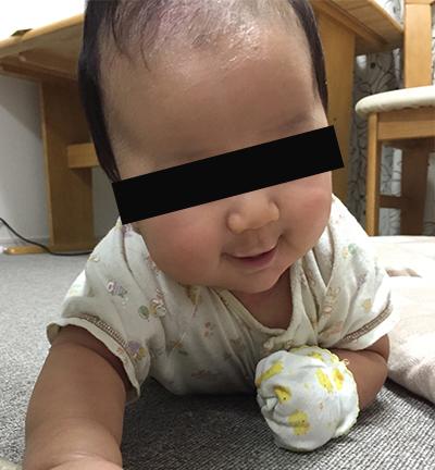 生後4か月。あちこち体をかきむしるため、ミトンで予防していた。アレルギーブログの記録より